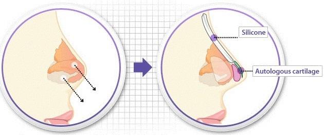 Nâng mũi bọc sụn chính là phương pháp kết hợp giữa sụn tự thân và sụn nhân tạo để nâng mũi