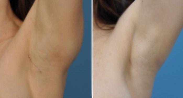 Đường mổ trùng với vết gấp nách nên khó nhận thấy sẹo