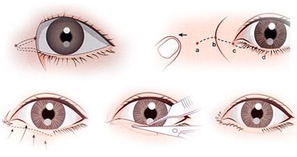 Phẫu thuật mắt to giúp bạn che lấp đi những khuyết điểm về đôi mắt