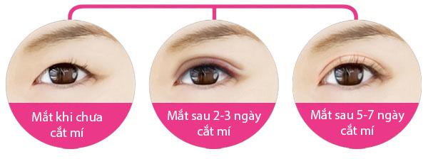 Nhìn chung cắt mí mắt mini cho kết quả dài lâu, ít là từ 15 đến 20 năm