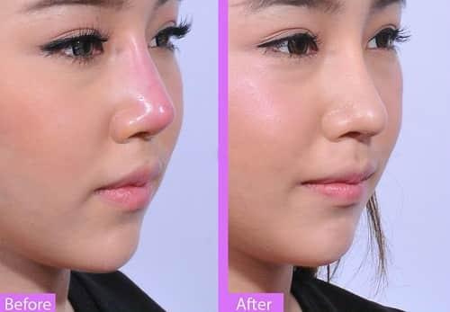 Sửa lại mũi đã phẫu thuật cho mũi đẹp như ý