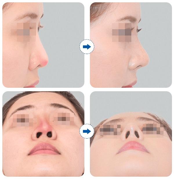 Mũi đẹp giúp bạn tự tin hơn với nhan sắc của mình