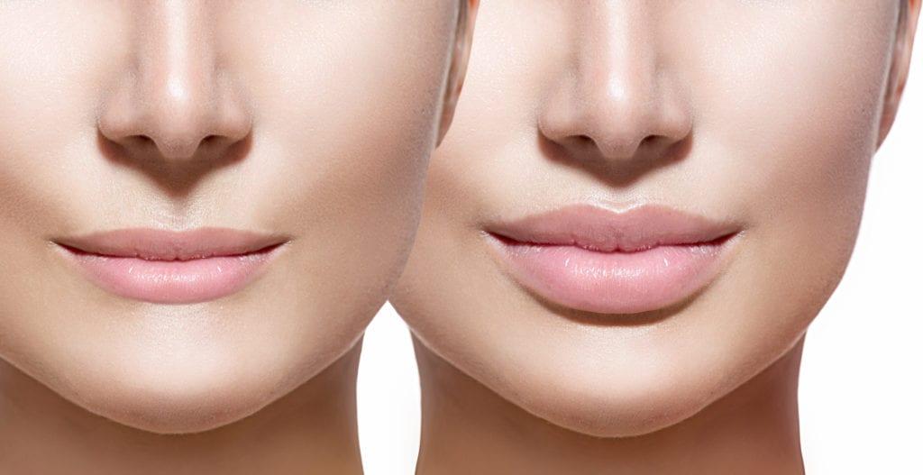 Tiêm filler môi mang đến cho bạn bờ môi gợi cảm, quyến rũ thu hút mọi ánh nhìn