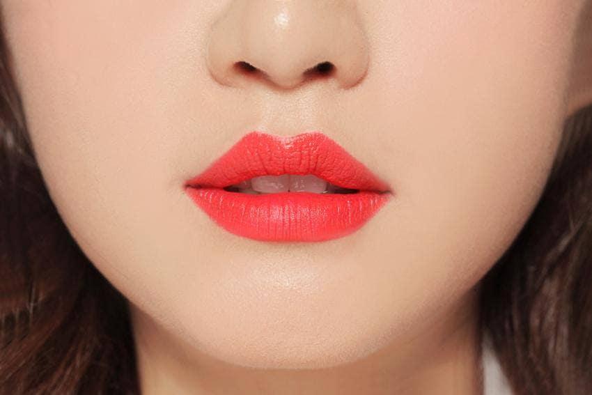 Tiêm Filler môi bao lâu hết sưng?