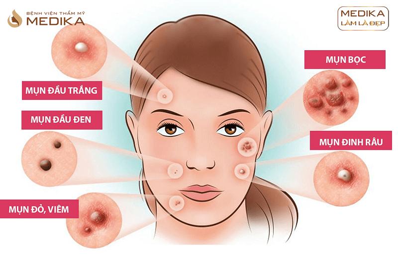 Các loại mụn Free Acne điều trị mụn chuyên sâu ở Bệnh viện thẩm mỹ MEDIKA