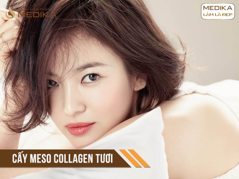 Cấy Collagen tươi ở Bệnh viện thẩm mỹ MEDIKA.vn