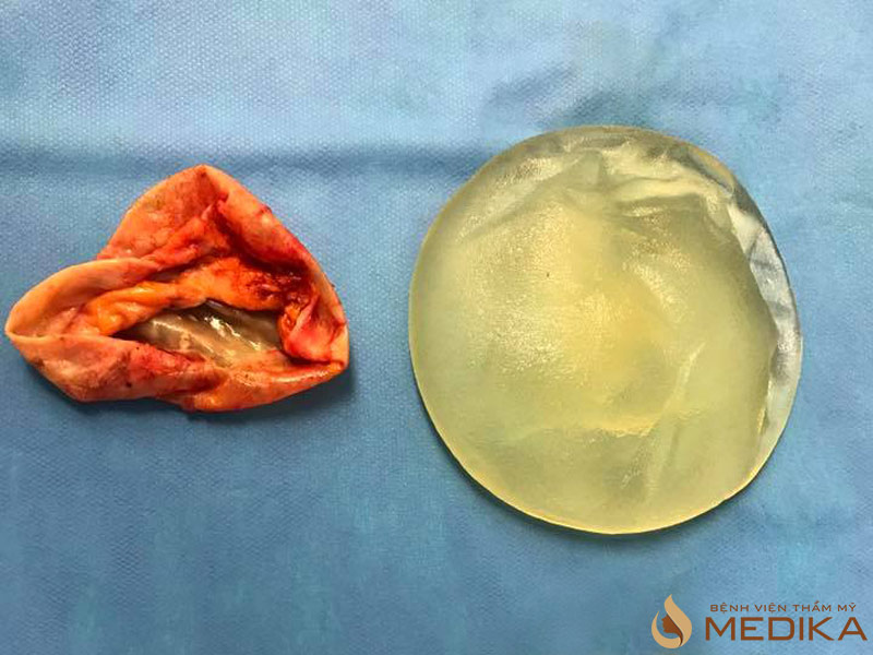 Chẩn đoán xác định co thắt bao xơ sau nâng ngực