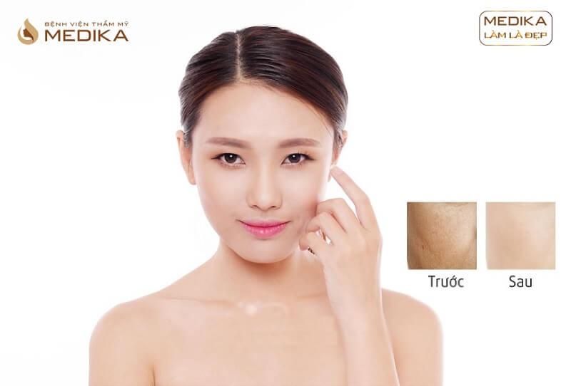 Kết quả Cấy Collagen tươi ở Bệnh viện thẩm mỹ MEDIKA.vn