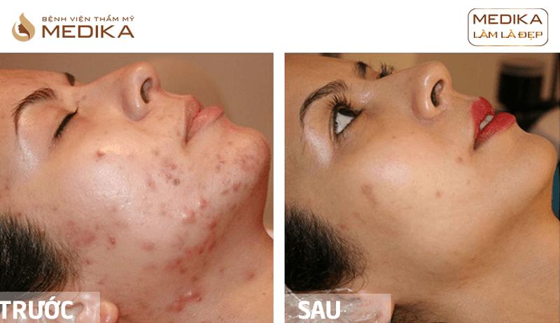 Kết quả Free Acne điều trị mụn chuyên sâu ở Bệnh viện thẩm mỹ MEDIKA