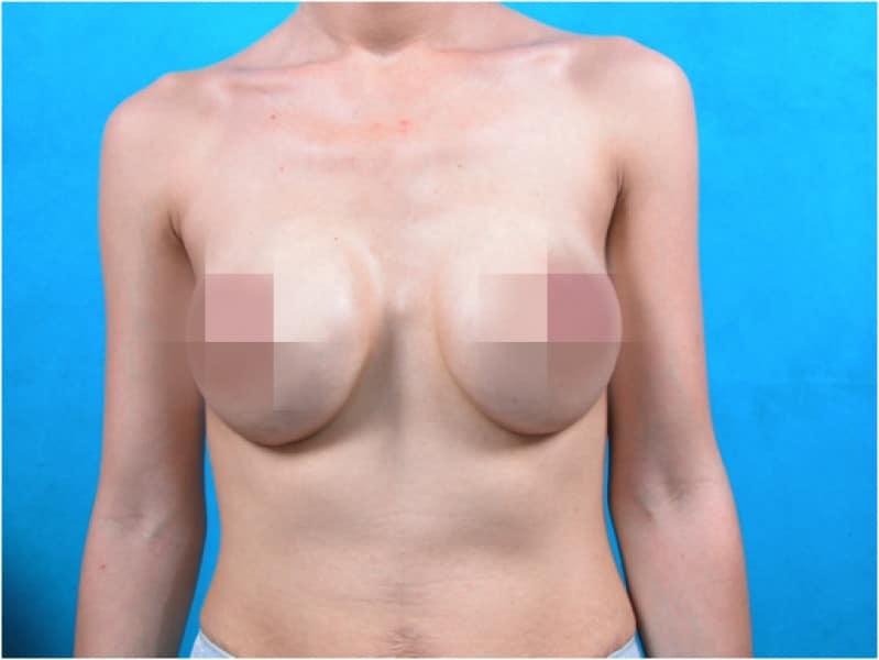Để khắc phục tình trạng co thắt bao xơ có thể tiến hành cắt bỏ bao xơ