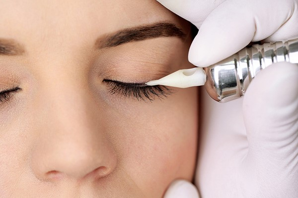 Thực hiện phun mí mở tròng giúp bạn khắc phục được tình trạng mắt 1 mí