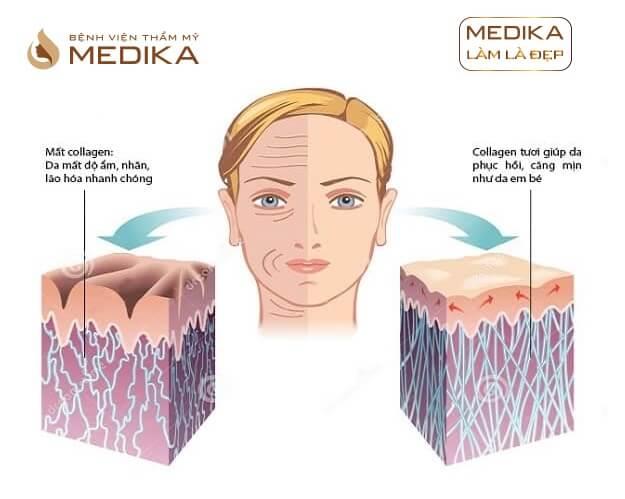 Phương pháp Cấy Collagen tươi ở Bệnh viện thẩm mỹ MEDIKA.vn