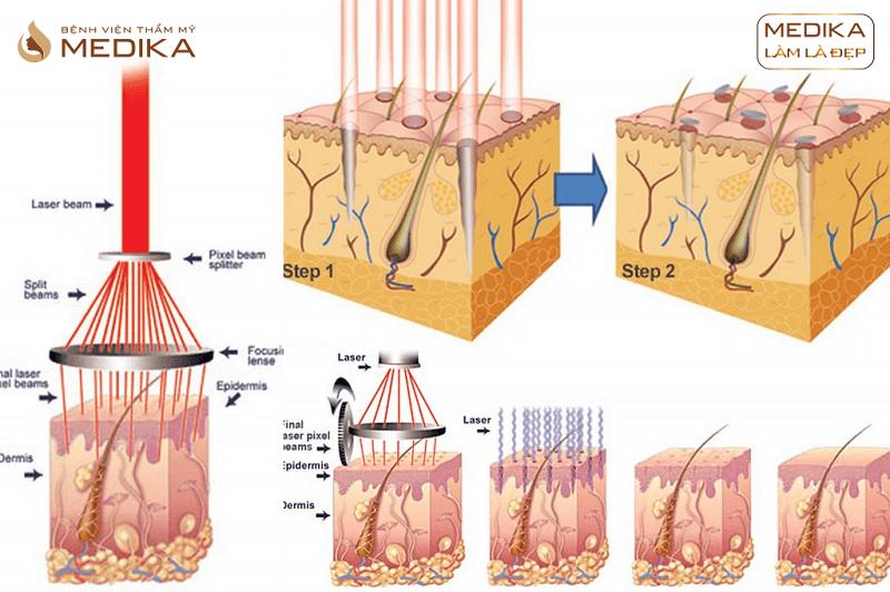 Phương pháp Free Acne điều trị mụn chuyên sâu ở Bệnh viện thẩm mỹ MEDIKA