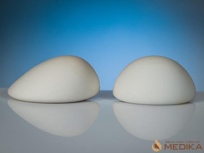 Việc đặt túi độn trong ngực có ảnh hưởng đến sức khỏe không?