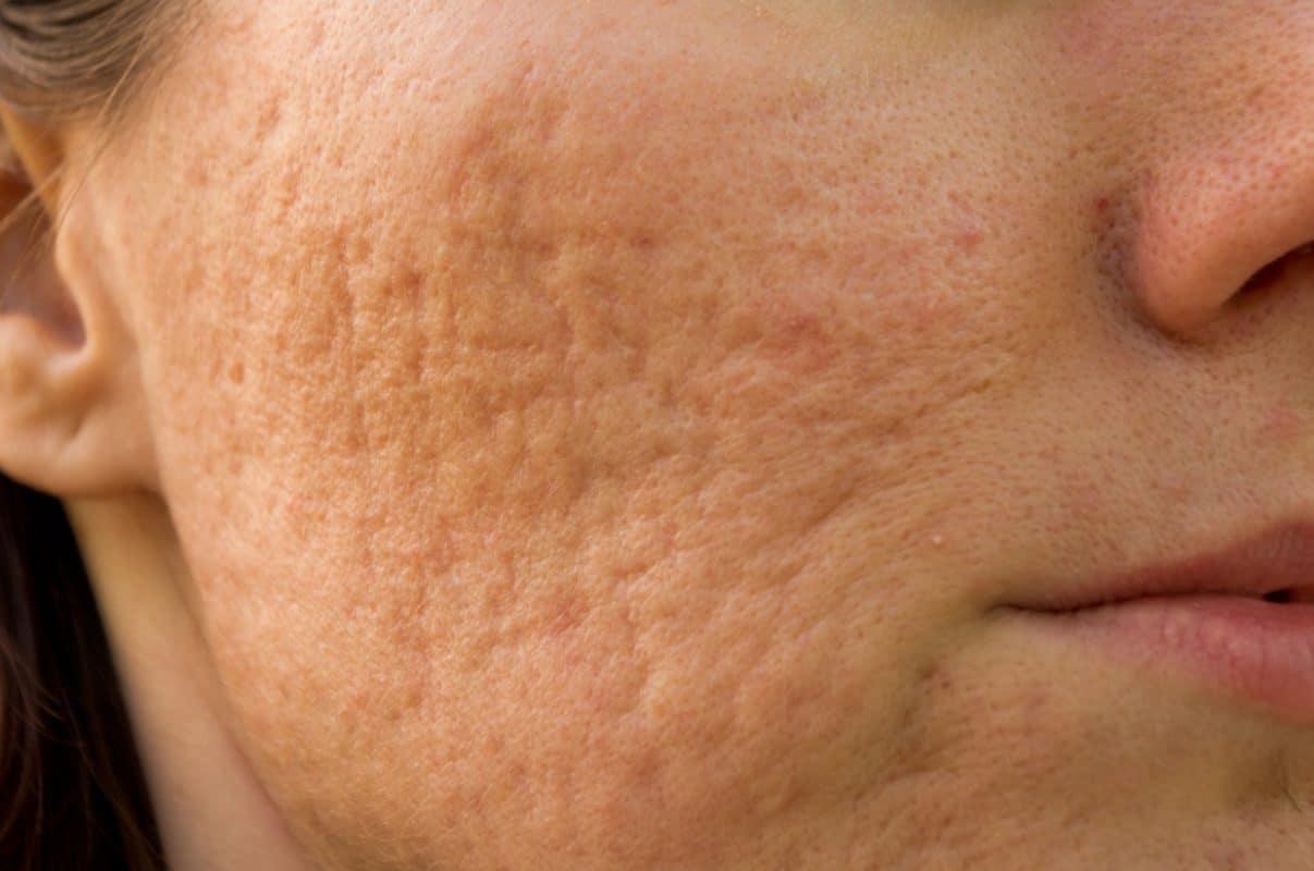 Điều trị sẹo rỗ bằng Laser có hiệu quả không?