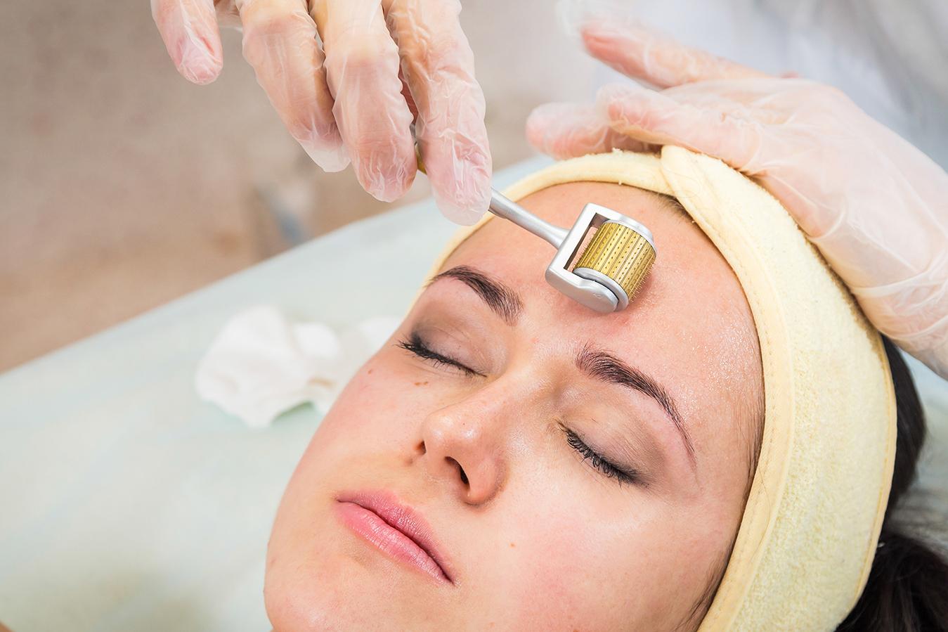 Làm đẹp với phương pháp lăn kim da mặt