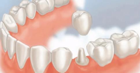 Trồng răng sứ bao lâu thì hồi phục?