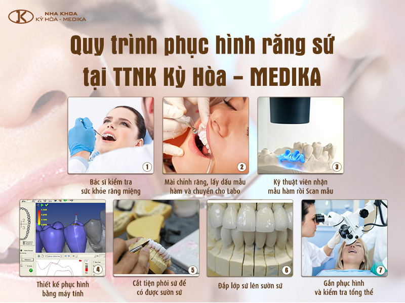 Trồng răng sứ thẩm mỹ tại TT Nha Khoa Kỳ Hòa - Medika