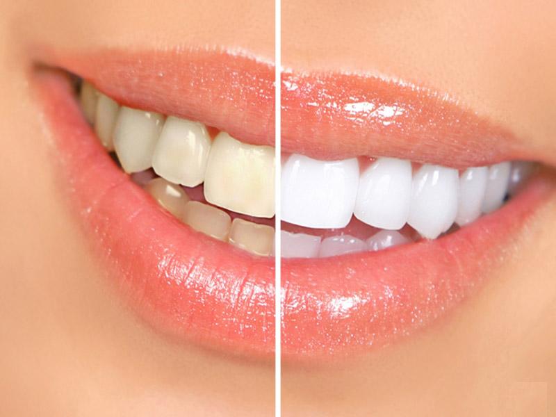 Để đảm bảo răng sau khi tẩy trắng không bị ê buốt