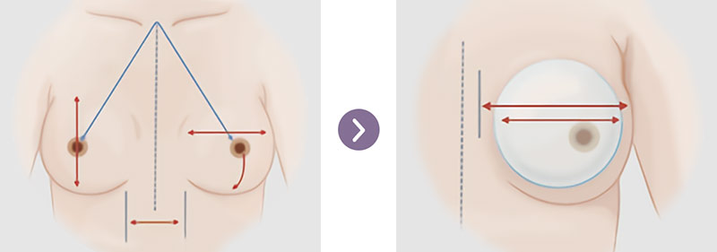 Quy trình nâng ngực  tại MEDIKA