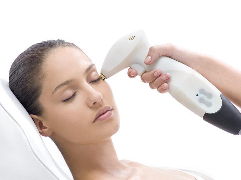 Công nghệ trẻ hóa da mặt bằng Laser