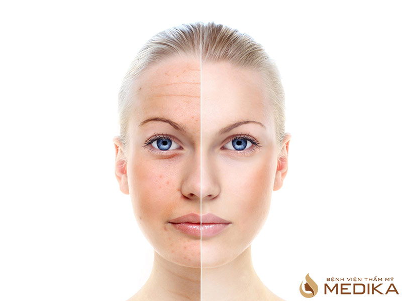 Những dấu hiệu lão hóa da và cách khắc phục