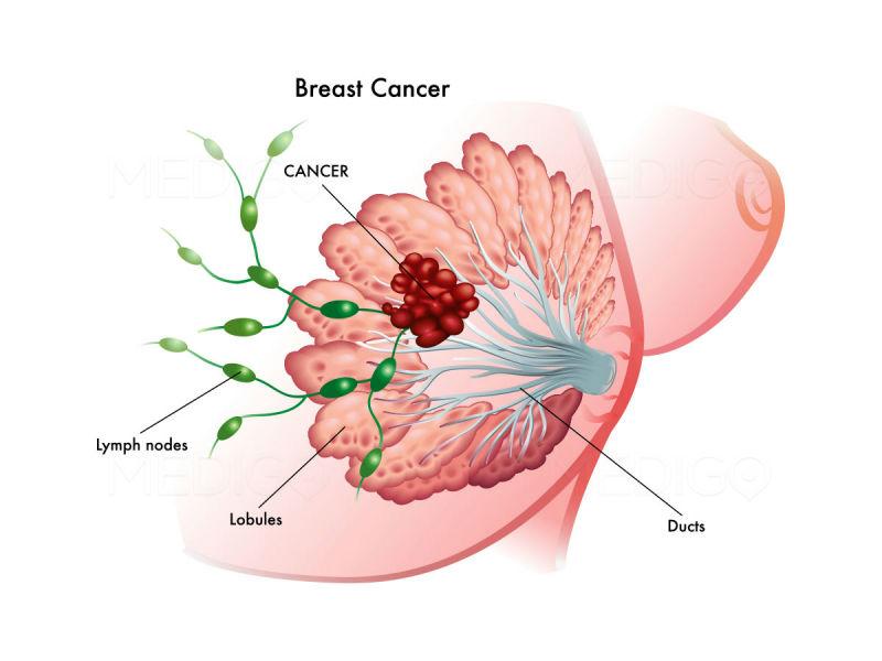Nâng ngực nội soi làm tăng kích thước vòng 1 với sự hỗ trợ của thiết bị nội soi