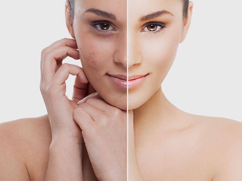 PRP là 1 trong những phương pháp khá hiệu quả trong việc điều trị da