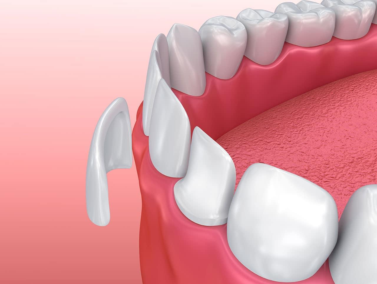 Răng sứ Veneer có thể bảo vệ răng tối đa