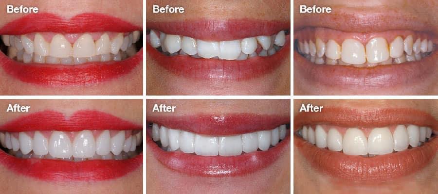Đạt được hiệu quả tốt sau khi làm răng sứ veneer