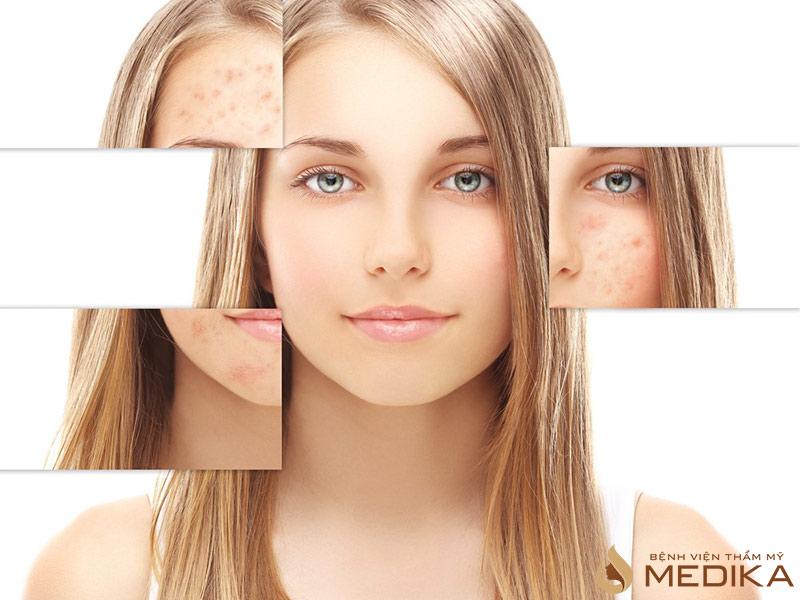 Cấy Meso Collagen tươi liệu pháp cho làn da lão hóa
