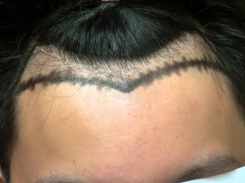 Kết quả điêu khắc sợi tóc