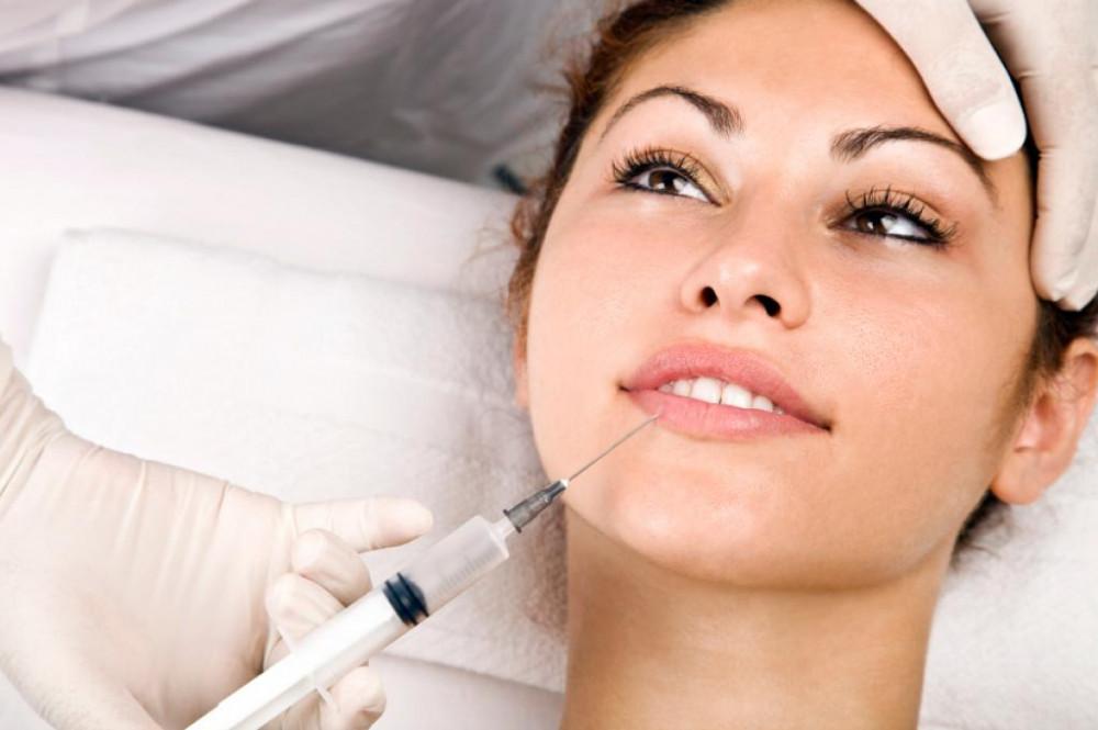 Tiêm Filler môi cho kết quả trong bao lâu?