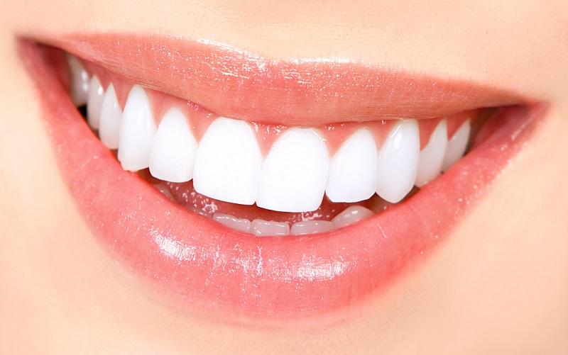Dấu hiệu cho biết bạn nên bọc răng sứ ngay hôm nay