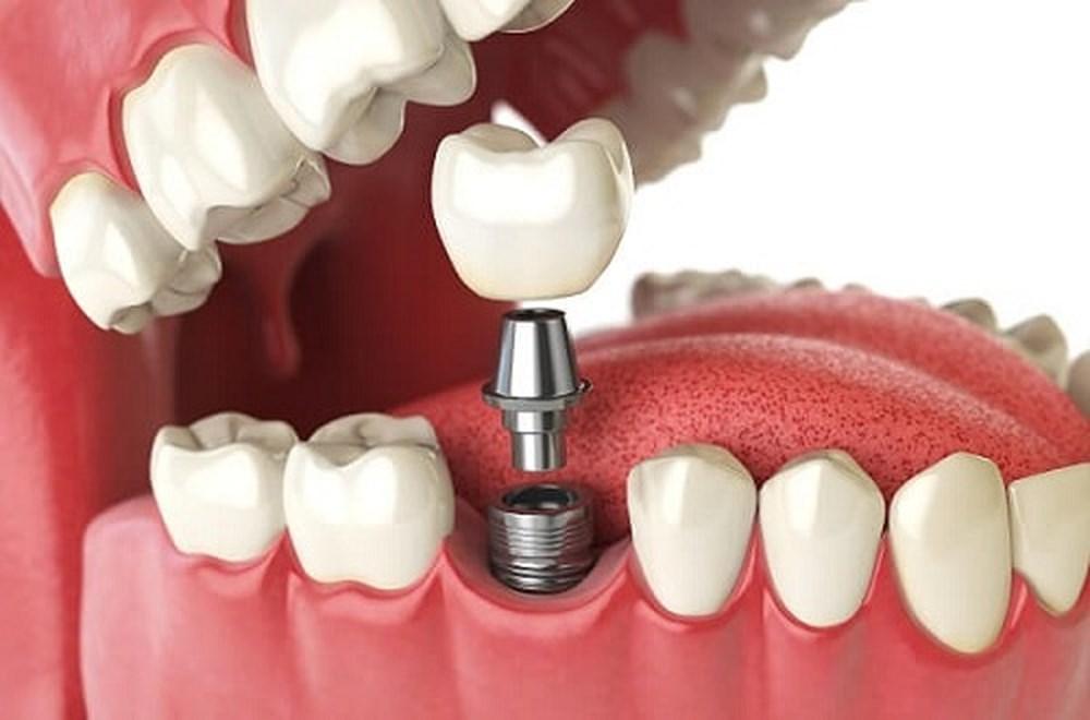 Những điều cần lưu ý sau khi cấy răng implant