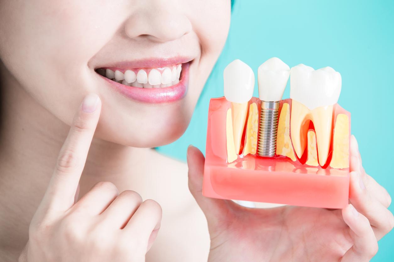 Quy trình cấy răng Implant chuẩn là như thế nào?