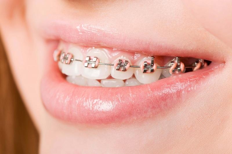 Khi nào bạn nên đi niềng răng?