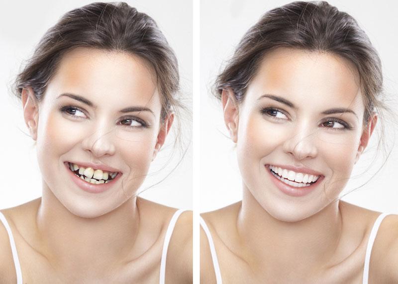 Mục đích của việc niềng răng là giúp bạn có 1 nụ cười đẹp, hàm răng đều