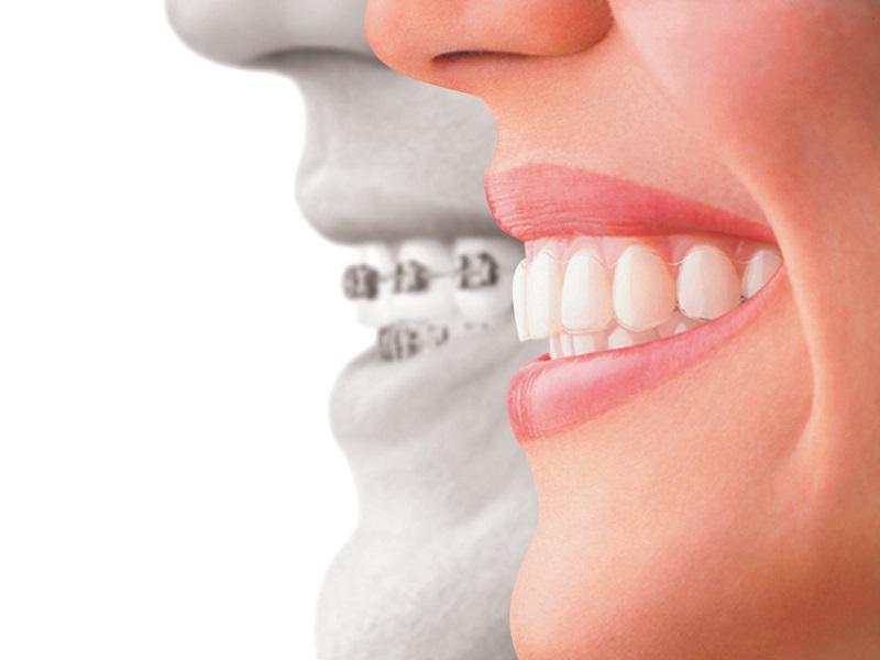 Niềng răng chỉnh nha thẩm mỹ giúp răng đêu nhau