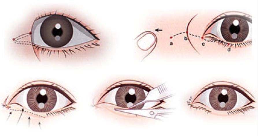 Phẫu thuật thẩm mỹ mắt to chỉ là một phẫu thuật nhỏ
