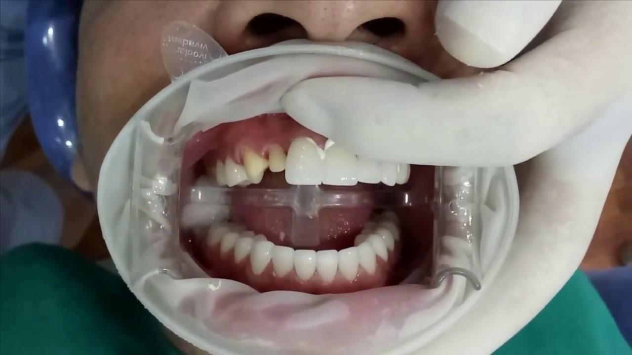 Quá trình bọc răng sứ đã hoàn tất