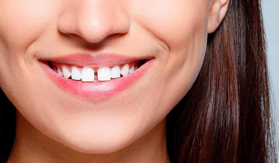 Kết quả hình ảnh cho răng thưa