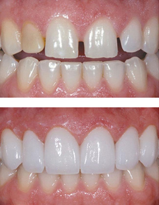 Tại Nha Khoa MEDIKA chúng tôi cam kết sử dụng răng sứ cao cấp
