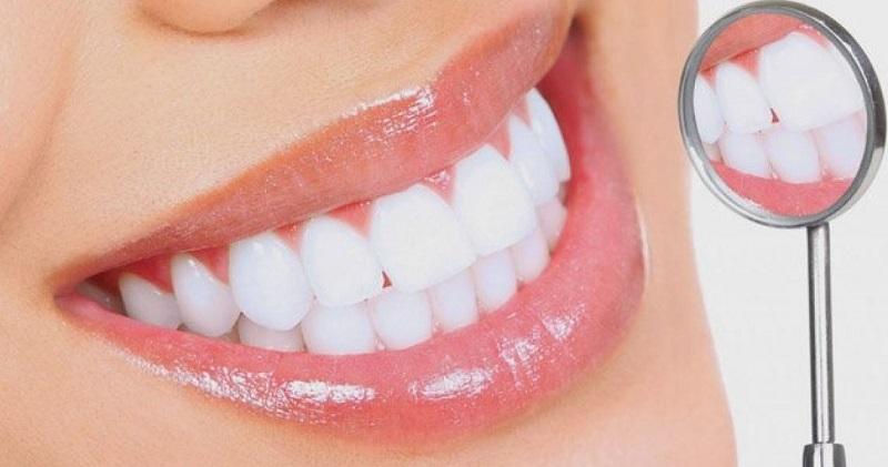 Bọc sứ cho răng hô nhẹ