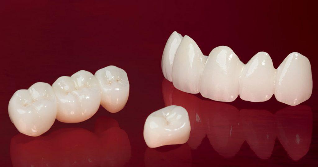 Bọc răng sứ thẩm mỹ là phương pháp được rất nhiều khách hàng lựa chọn