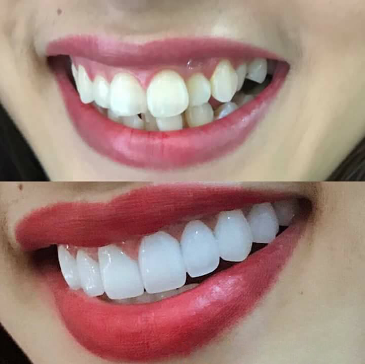 Bọc răng sứ chỉ áp dụng tốt chotrường hợp răng hô do răng