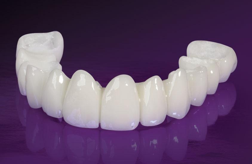 Răng toàn sứ không bị đổi màu theo thời gian