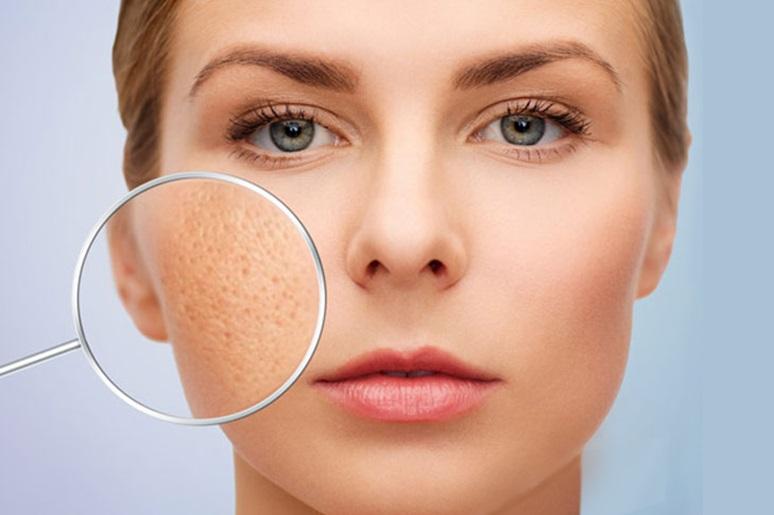 Nguyên nhân da bị sẹo rỗ sau mụn và cách điều trị hiệu quả