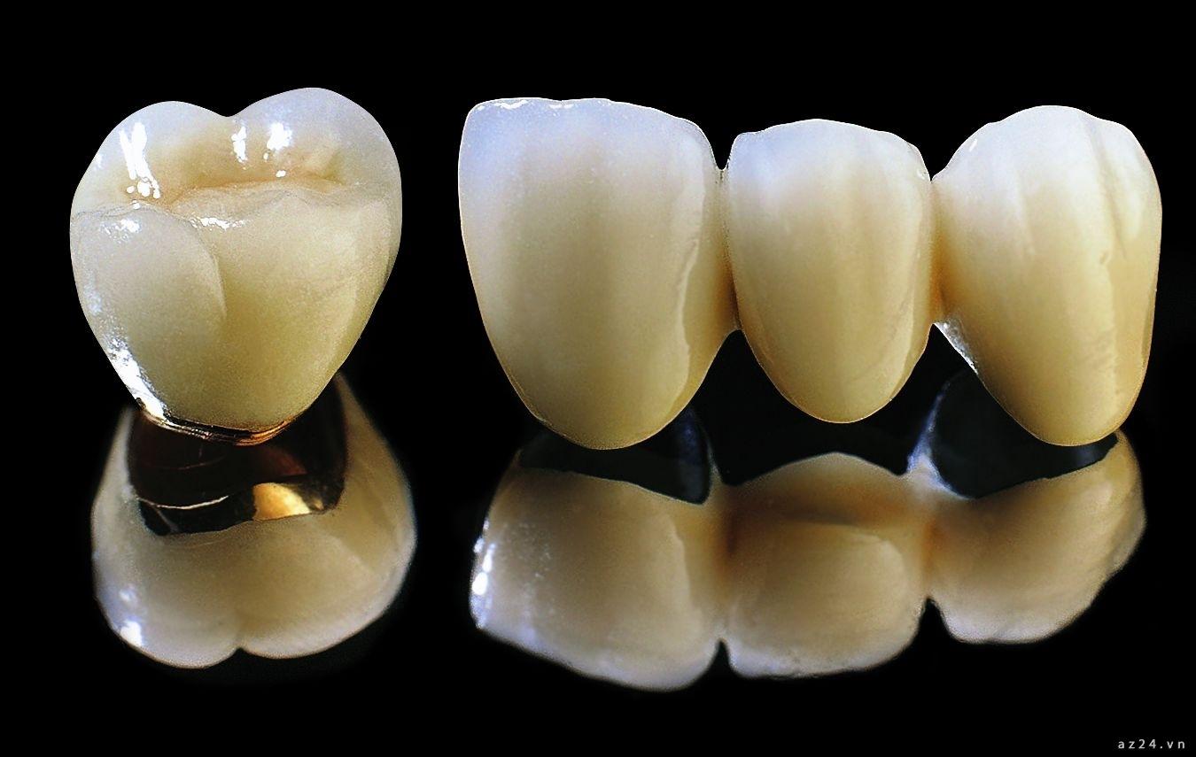Răng sứ kim loại mà phổ biết nhất là răng sứ Titan