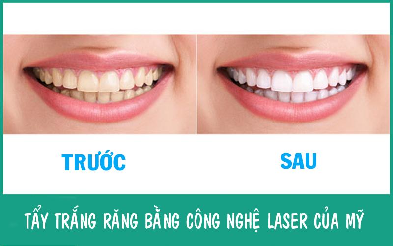 Quy trình tẩy trắng răng bằng Plaser Plasma được thực hiện theo đúng kỹ thuật chuẩn